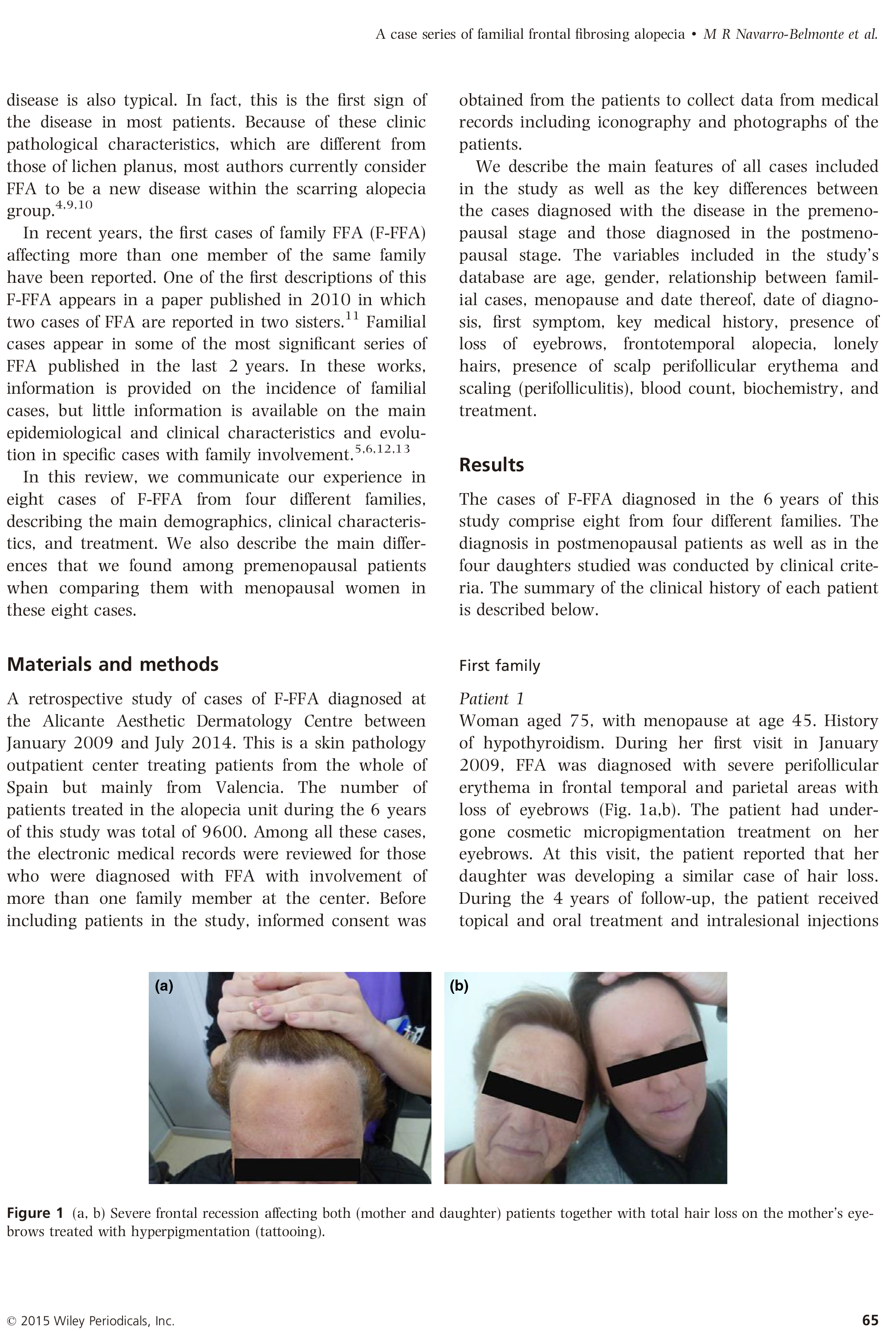 Case series of familial frontal fibrosing alopecia and a review